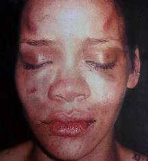 A battered Rhianna
